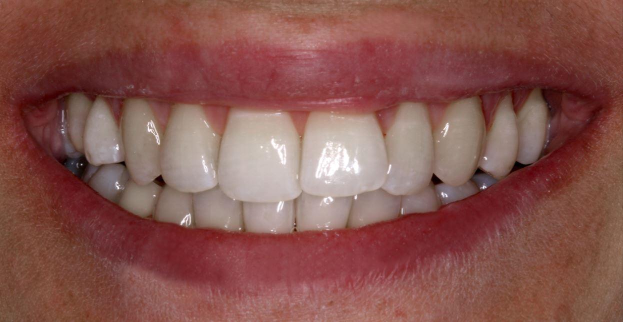 Dopo_Igiene_Dentale