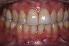 Prima_Igiene_Dentale_1