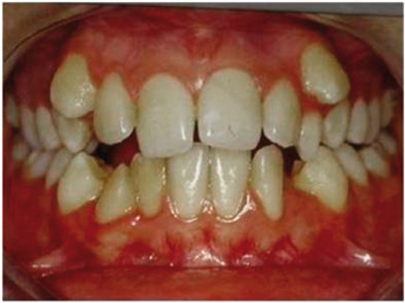 Prima_Ortodonzia