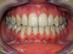 FIne_Ortodonzia