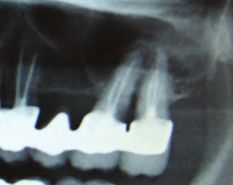 radiografia-preoperatoria